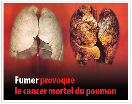 danger du tabac - cancer du poumon